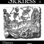 Sweating Sickness or the English Sweat